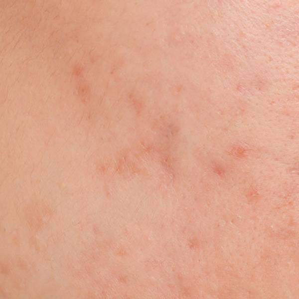 Článok o akné – hlavný obrázok